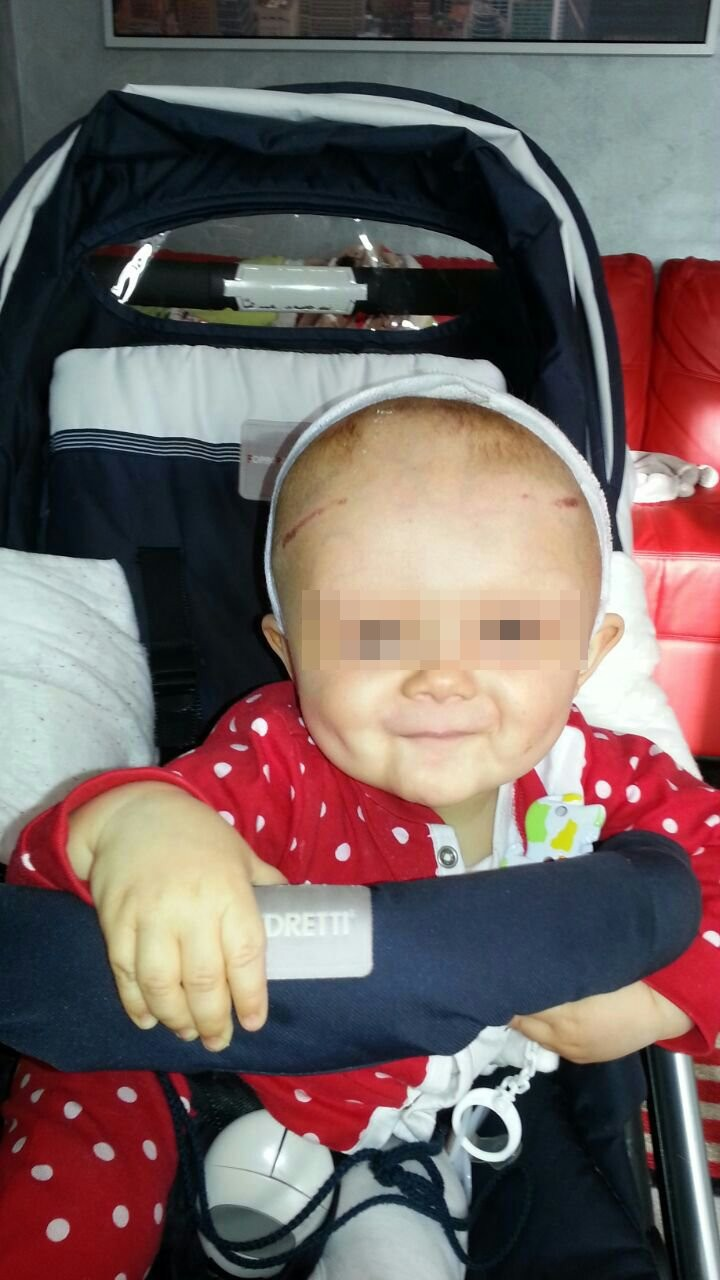 Craniostenosi, bimbo dopo intervento